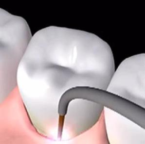 Laser Gum Surgery